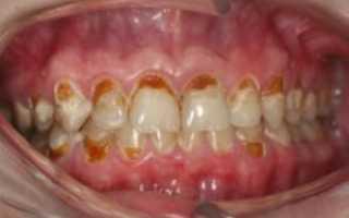 К чему снится кариес на зубах
