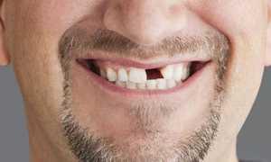 К чему снятся выбитые зубы